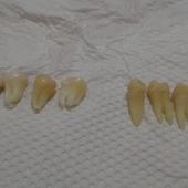 矯正-拔的7顆牙齒