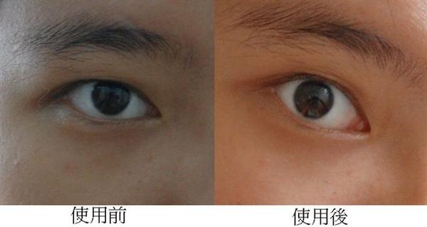 右眼眼膜使用前後對照.bmp