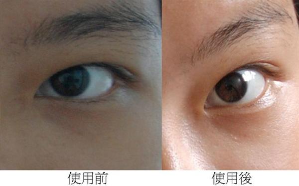 左眼眼膜使用前後對照.bmp