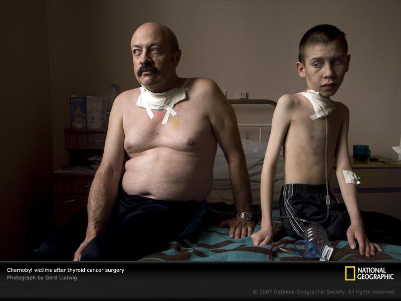 chernobyl-cancerous-.jpg