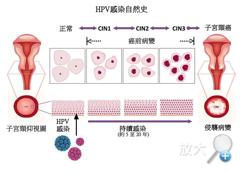 細胞變異.jpg
