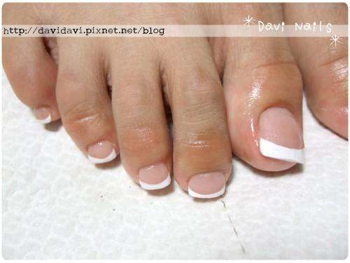 20110810。足部矯正型水晶