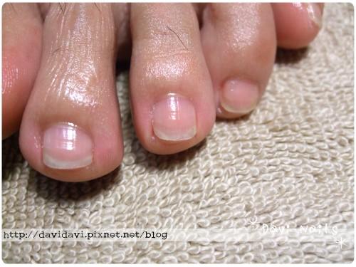 20101107。深層蜜蠟保養後腳趾特寫