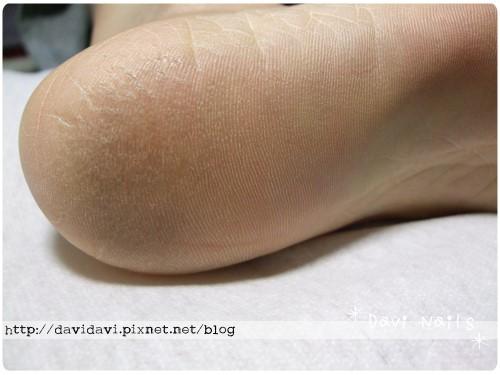 20101225。深層蜜蠟右腳保養前