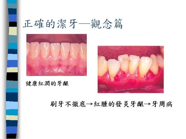 刷牙訣竅 (1).JPG