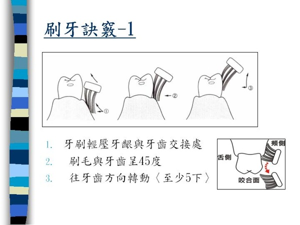 刷牙訣竅 (3).JPG