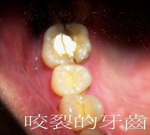 咬裂的牙齒.jpg