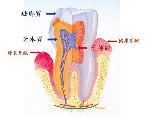 咬裂的牙齒2.jpg