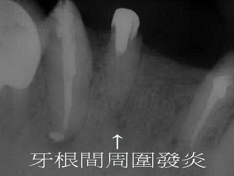牙齒再植術的側錄記實1.jpg