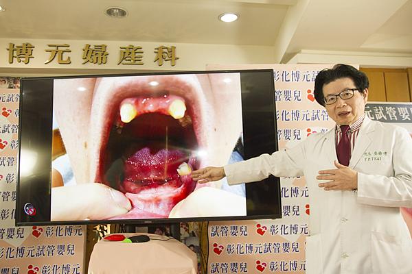罕病者欲求健康子 盼政府專案補助胚胎快篩試管嬰兒1.png