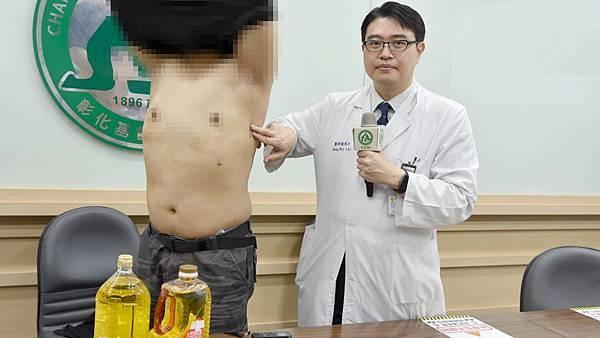 彰基3D內視鏡乳房手術重建 意外掀D奶男霸凌史1.jpg