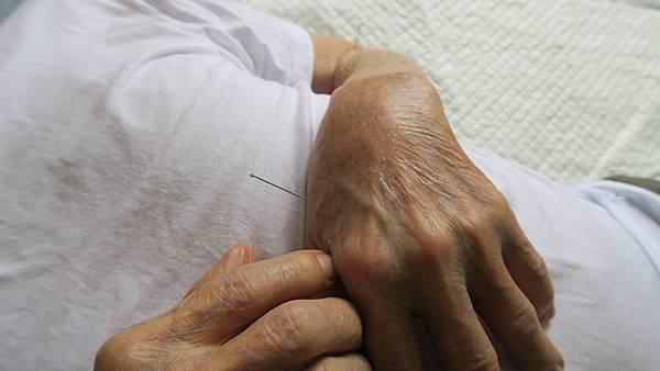 彰化醫院中醫居家醫療 到宅看診針炙服務2.jpg