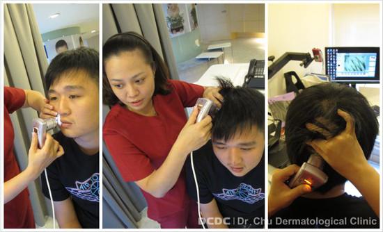 小畢植髮植鬍手術步驟1