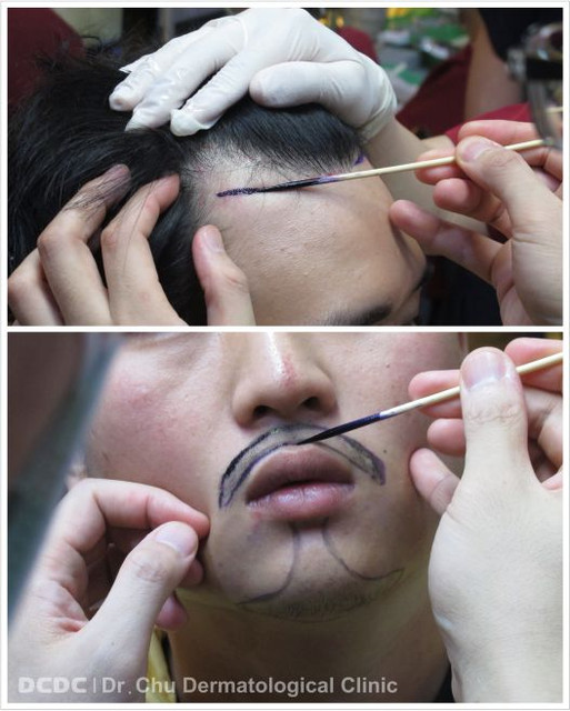 規劃植髮部位