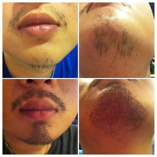 小畢植鬍術前術後自拍