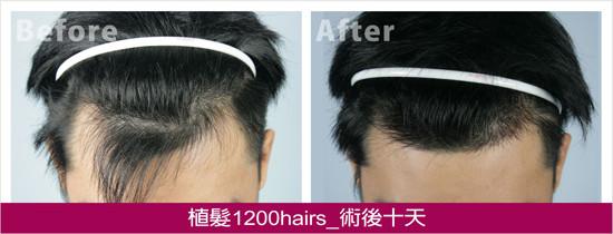 植髮1200hairs,正面術後十天