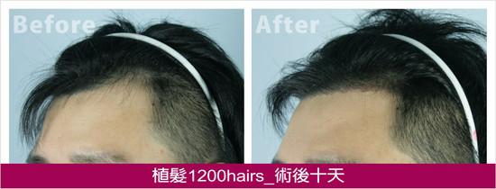 植髮1200hairs,左側術後十天