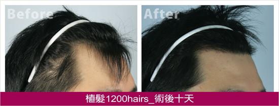植髮1200hairs,右側術後十天