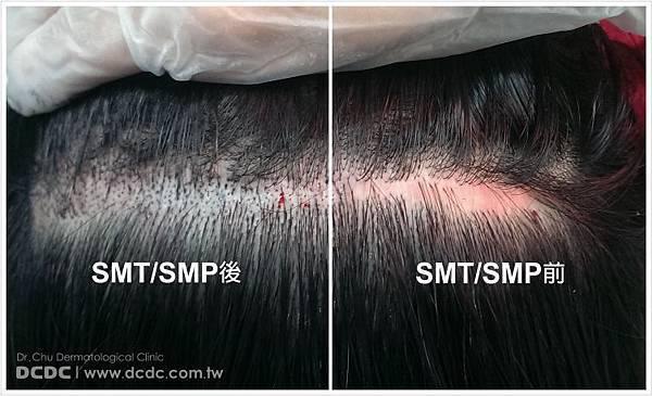 SMP照片-1.jpg