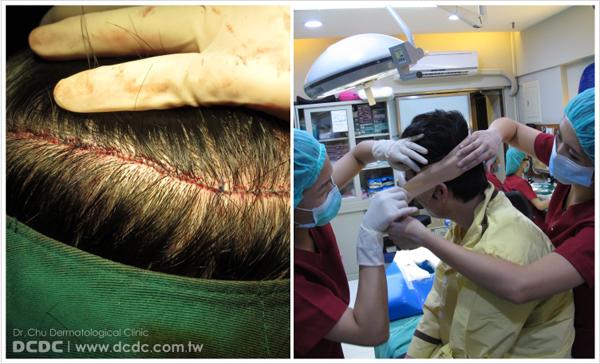 蔡先生植髮過程-10