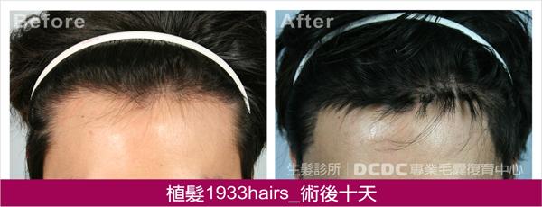 蔡植髮術後10D