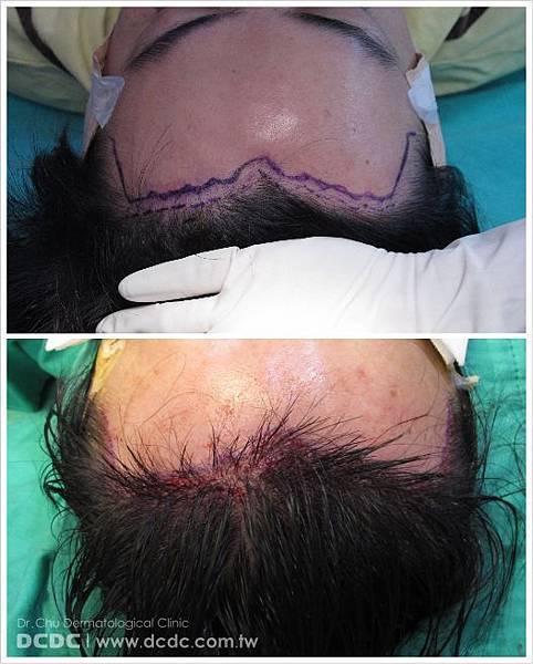 蔡先生植髮過程-16