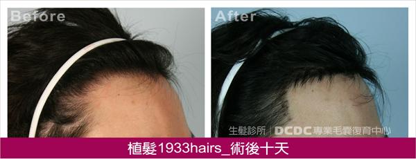 蔡植髮術後10D-2