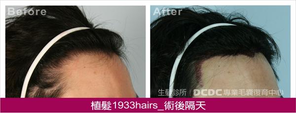 蔡植髮術後隔天-2
