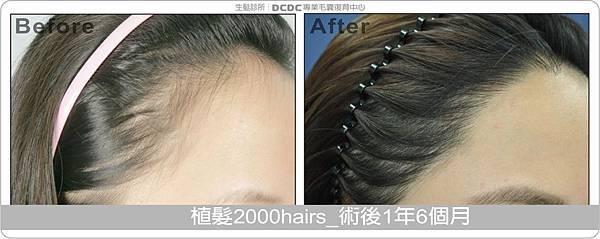 20121004_葉雅玲_植髮2000hairs-術後1年6個月-1