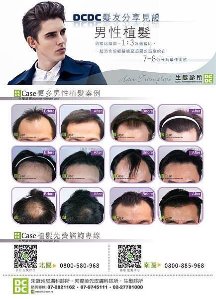 男性植髮-01
