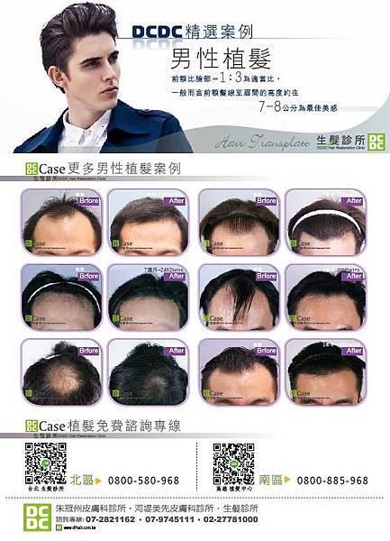 CS5男性植髮-01