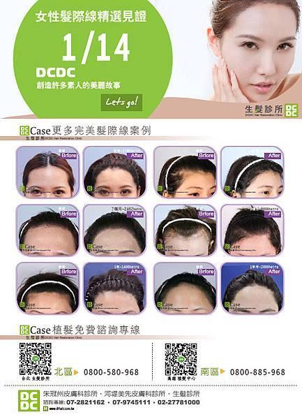 CS5女性髮際線20141118-01