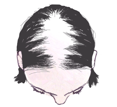 Christmas-Tree-Pattern-of-Female-Pattern-Hair-Loss-The-Belgravia-Centre-Clinic-London.png