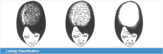 Ludwig_Classification_for_Diagnosing_Female_Hair_Loss.jpg
