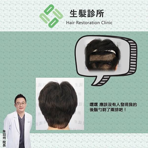 segmental shaving.jpg
