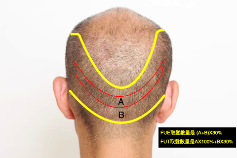 FUT+FUE donor.png