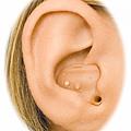 耳內型助聽器配戴圖 ITE .png