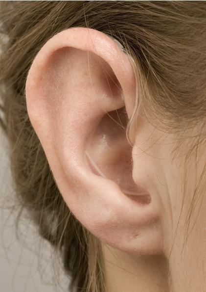巨泉- 助聽器配戴圖1
