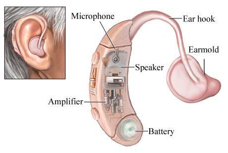 類比式助聽器 2