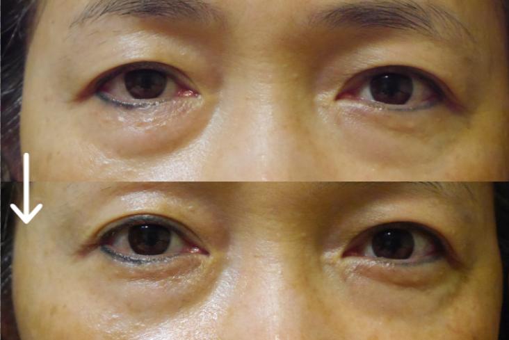 NEOGEN DERMALOGY 黑鑽魚子全效賦活眼部精華乳.PNG