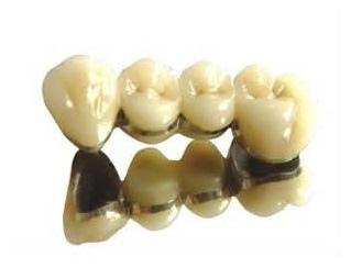假牙種類材質9