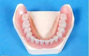 假牙種類材質1