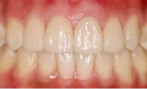 假牙種類材質8