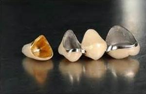 假牙種類材質10