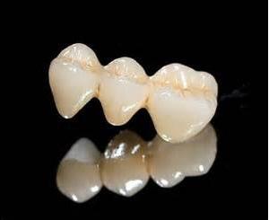 假牙種類材質6
