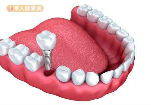 缺牙一定要植牙嗎?台大牙醫師全解答!