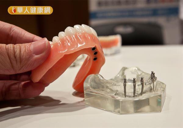 缺牙一定要植牙嗎?台大牙醫師全解答!3