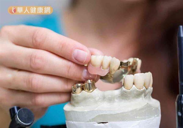 活動假牙好用嗎?病人迷思,牙醫師這樣說...((新聞分享))