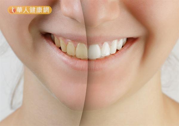 每天刷牙,牙齒還是好黃?美白牙齒有秘訣!8