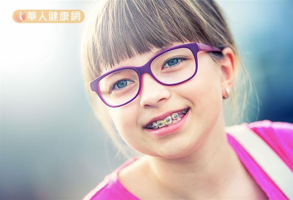 兒童暴牙別煩惱!生理性顱顏齒顎矯正改善((新聞分享))